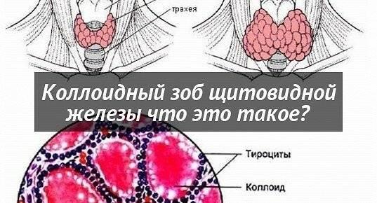 Коллоидный зоб щитовидной железы: что это такое, лечение (народными средствами, операция), питание и профилактика заболевания