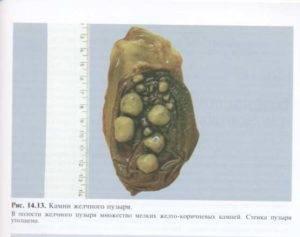беременность при камнях в желчном пузыре
