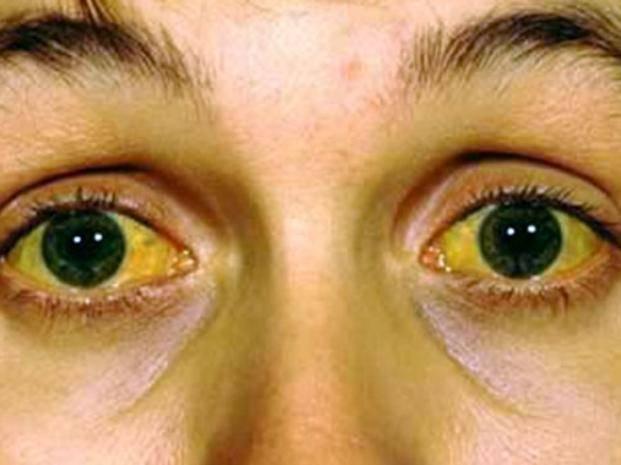 Холестатическая желтуха: признаки и симптомы, диагностика, лечение