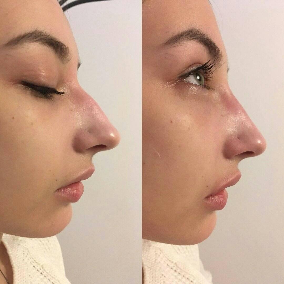 как уменьшить нос без операции