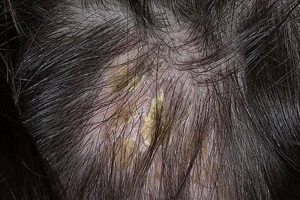 Дерматит на голове у ребенка чем лечить