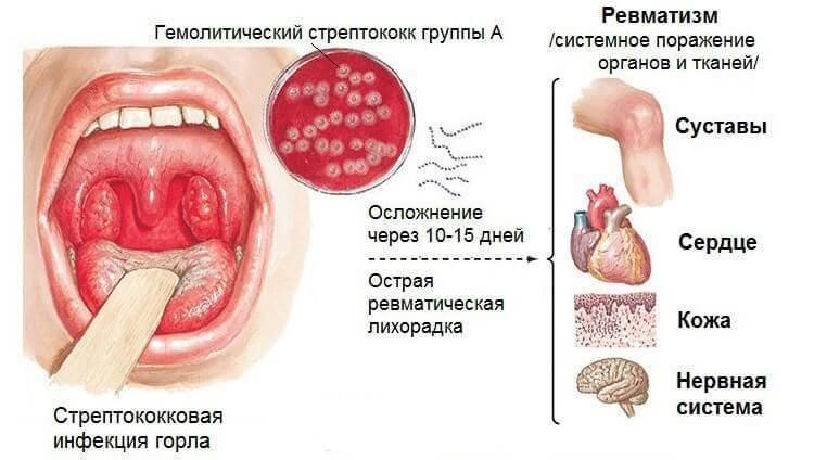 альфа гемолитический стрептококк горле