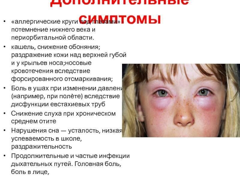 как проявляется аллергический кашель