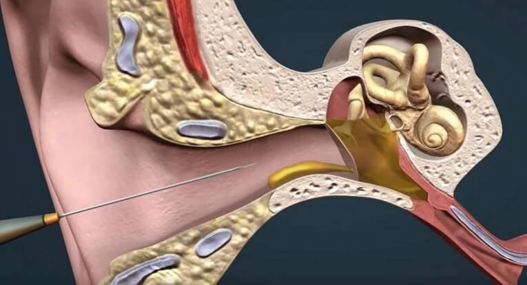 Тубоотит. симптомы и лечение у детей, взрослого, клинические рекомендации