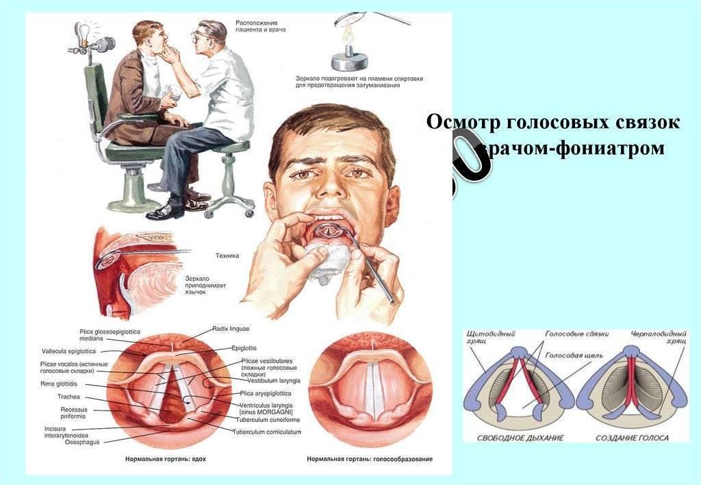Голосовые связки лечение таблетки. как лечить голосовые связки народными средствами. симптомы и проявления воспаления голосовых связок