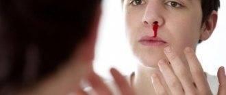 Почему в носу пахнет кровью