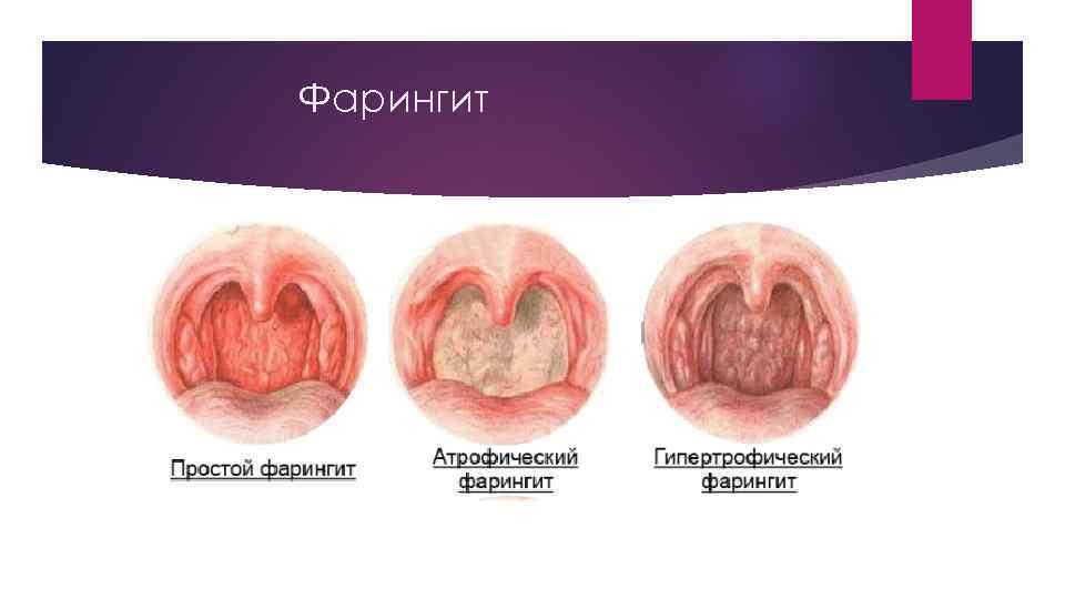 острый фарингит симптомы