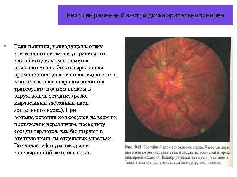 Отек диска зрительного нерва: признаки, лечение, осложнения — онлайн-диагностика