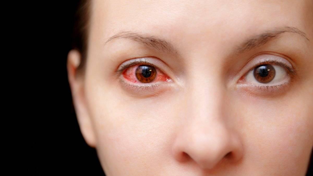 как убрать красноту с глаз в домашних условиях