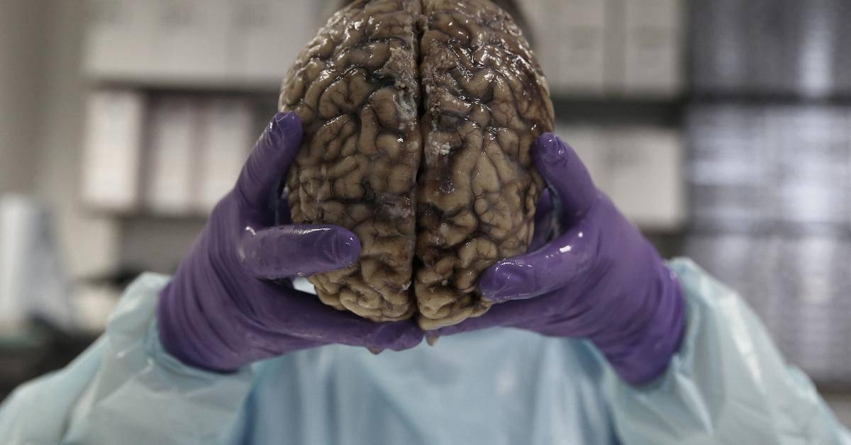 Симптомы и лечение паразитов в головном мозге человека
