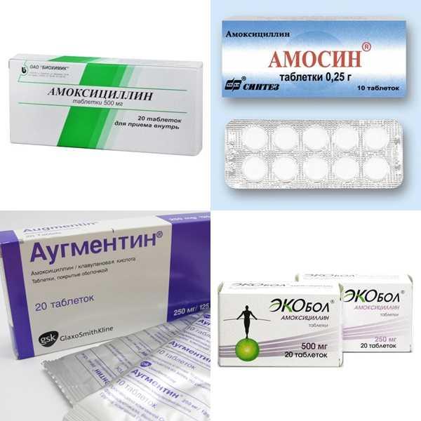 Местные антибиотики для горла: обзор эффективных препаратов