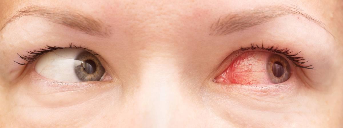 красные уголки глаз причины