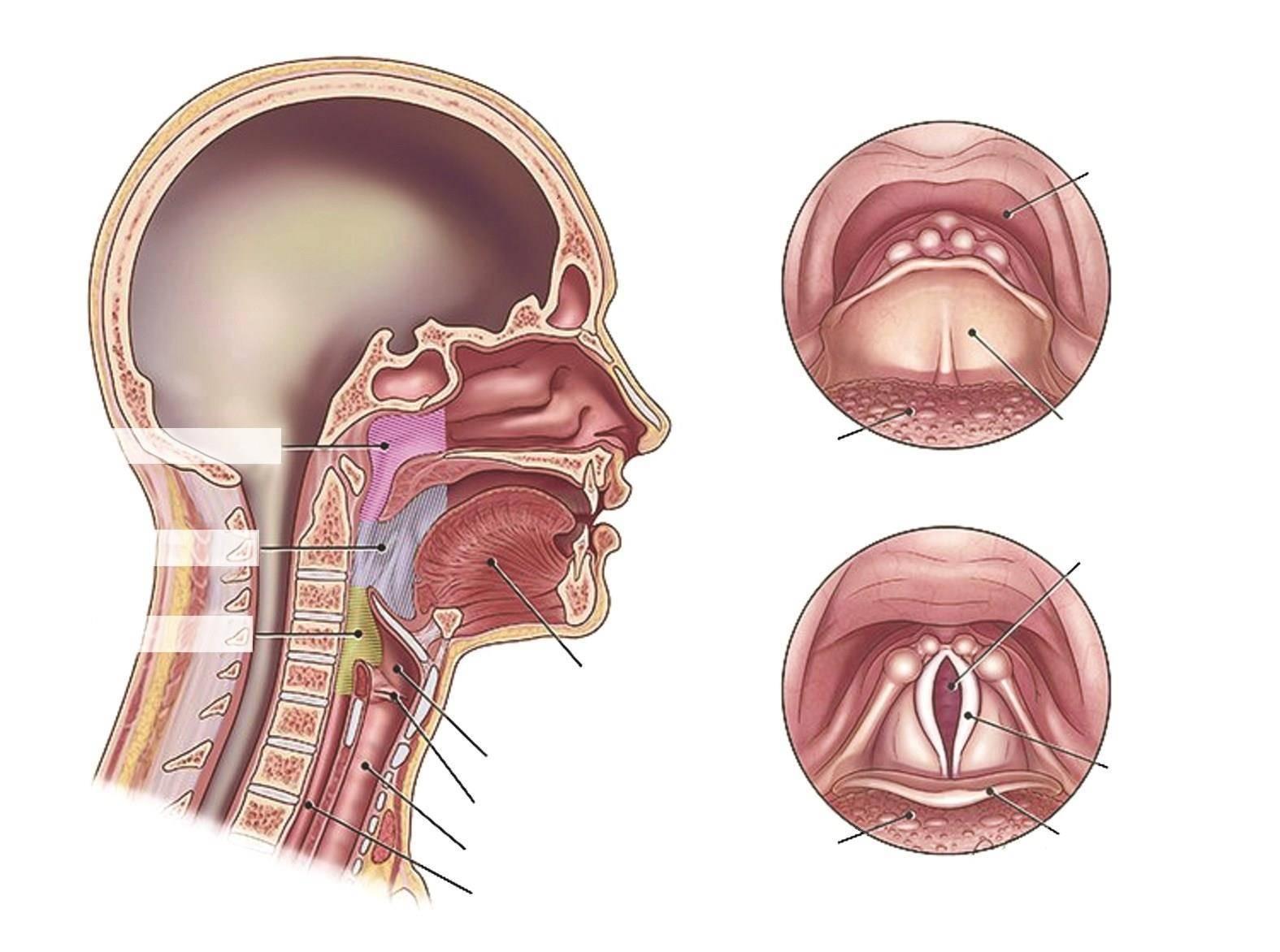 Доброкачественные опухоли глотки
