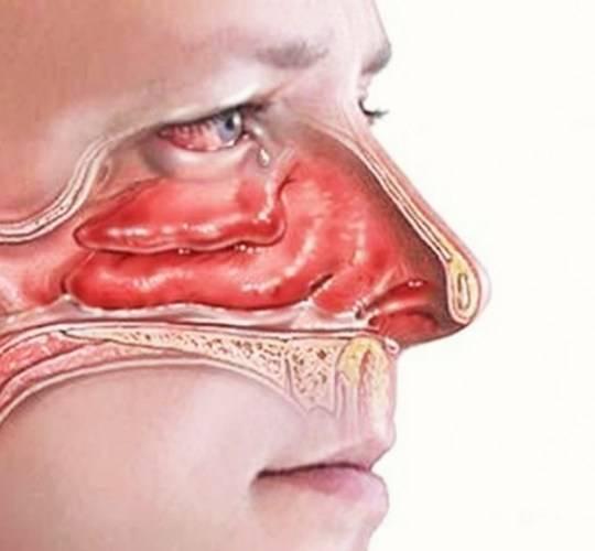 Стафилококк в носу:  симптомы, признаки, лечение