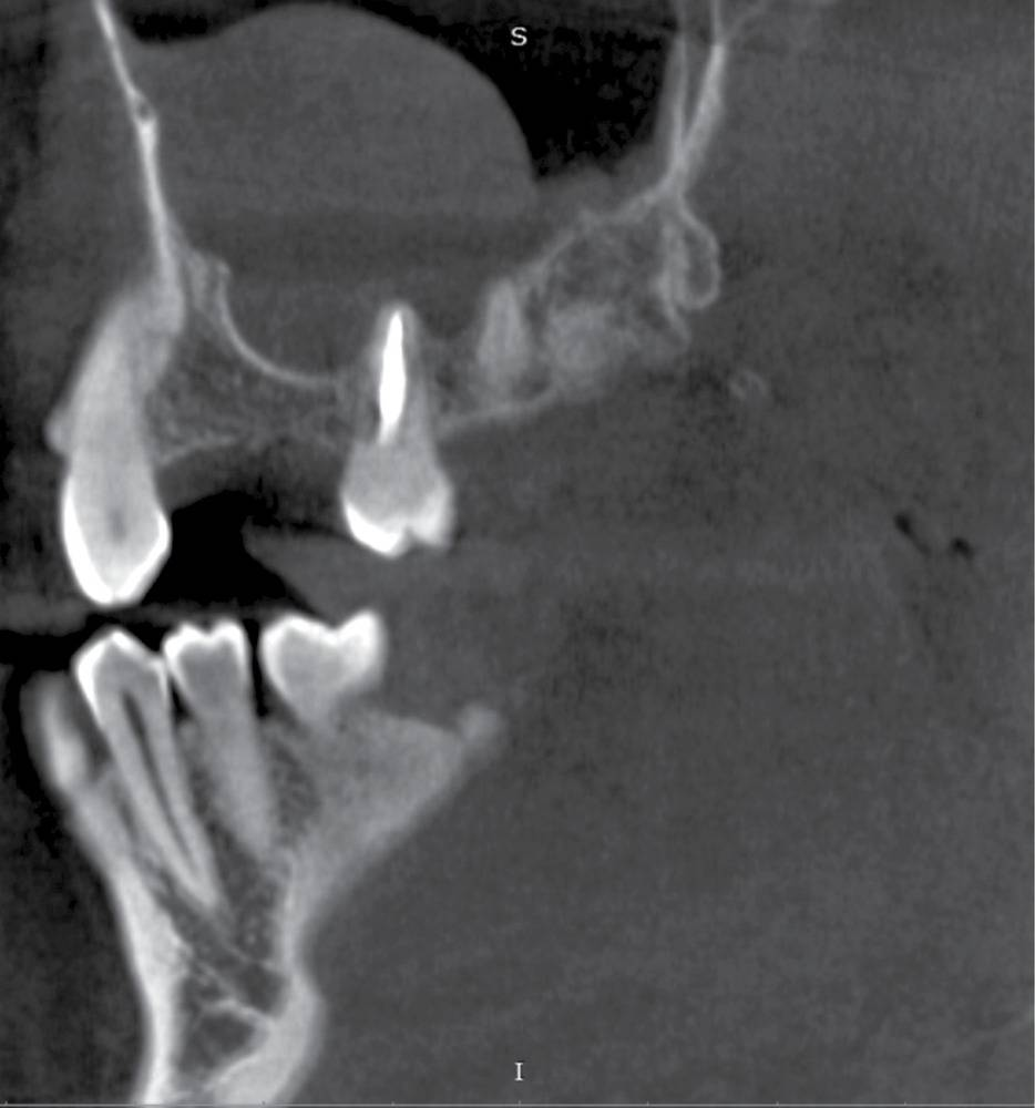 киста в гайморовой пазухе лечение