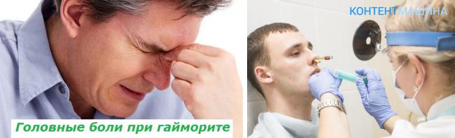 Почему при гайморите болит голова?
