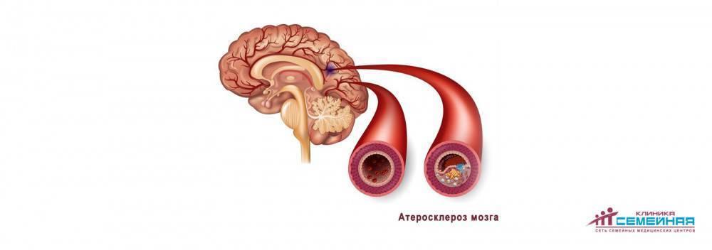 атеросклероз продолжительность жизни