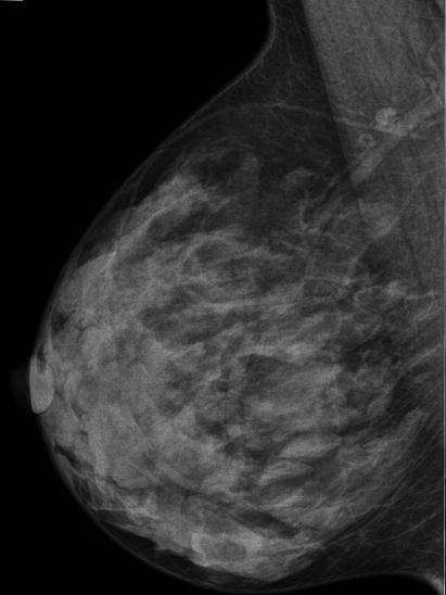 Маммография фиброзные изменения