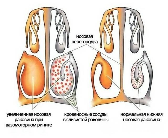 лечение гипертрофического ринита