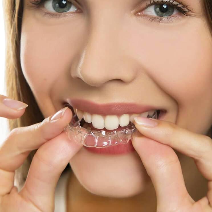 могут ли зубы сами выровняться