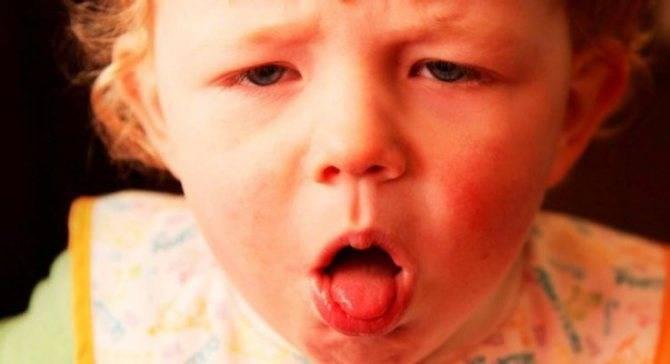 у ребенка резко начался лающий кашель