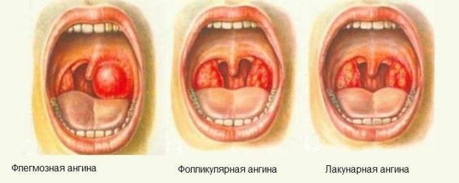 Грибковая ангина: симптомы, лечение, диагностика и отличия от других видов заболевания