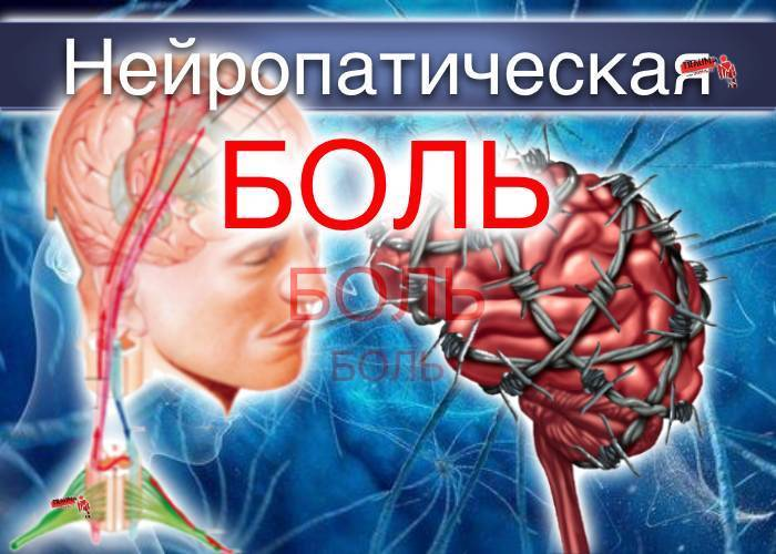 Патогенетические подходы к терапии нейропатической боли у пациента с сочетанной патологией. описание клинического случая