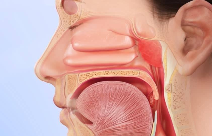 Воспаление носоглотки: причины, проявления, диагноз, как лечить