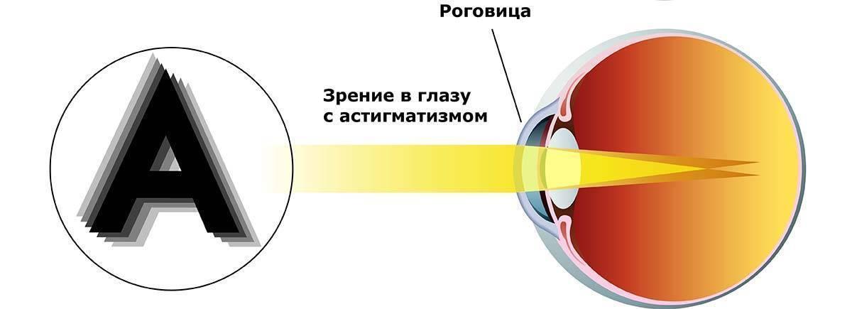 Сложный гиперметропический астигматизм обоих глаз, виды: прямой, обратный, косой, амблиопия при заболевании
