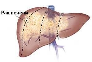 Рак печени 4 степени лечение народными средствами