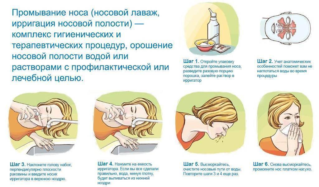 Лечение гайморита при беременности