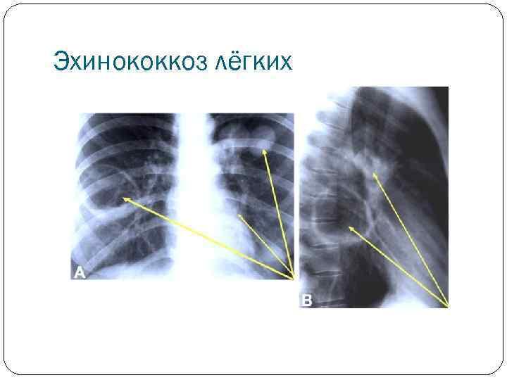 Эхинококкоз легких - симптомы болезни, профилактика и лечение эхинококкоза легких, причины заболевания и его диагностика на eurolab