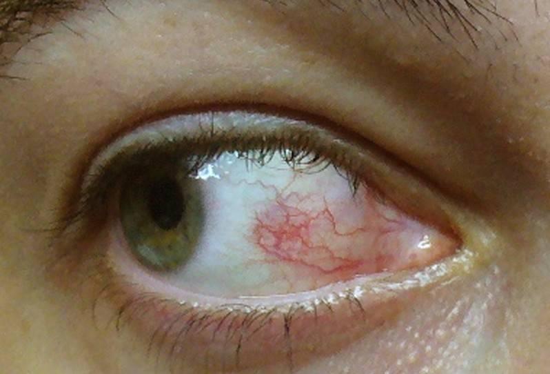 Что делать при возникновении герпетической инфекции возле глаза?