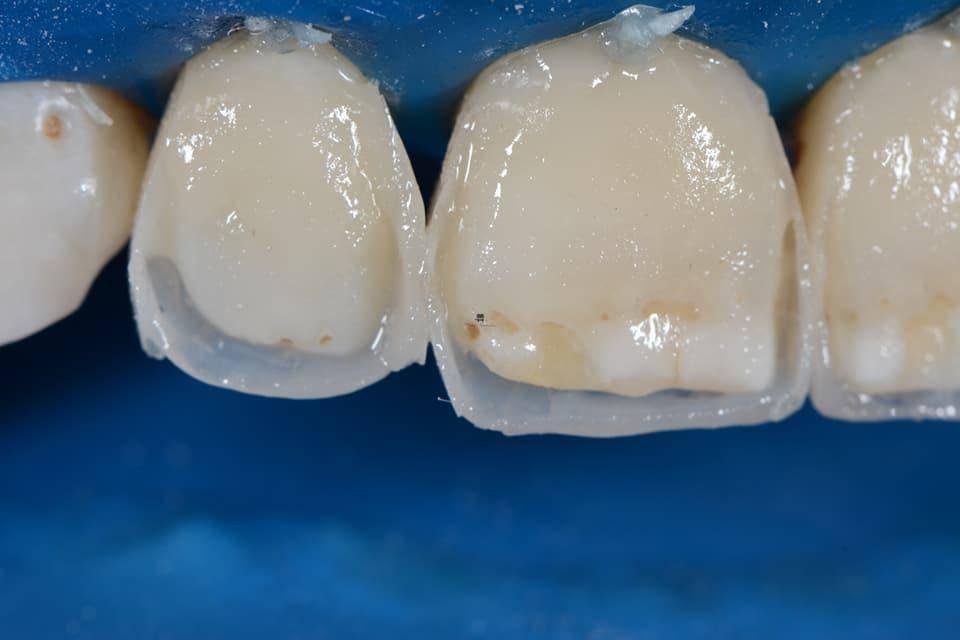 Реставрация зубов светоотверждаемыми материалами в стоматологии «президент»