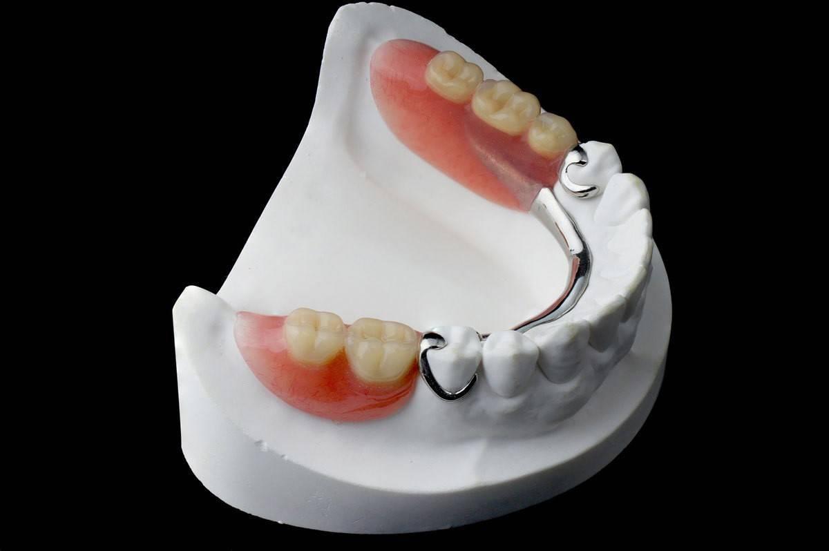 стоматология съемные протезы