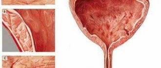 хронический шеечный цистит симптомы