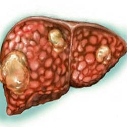 Рак печени 4 стадия — сколько живут?