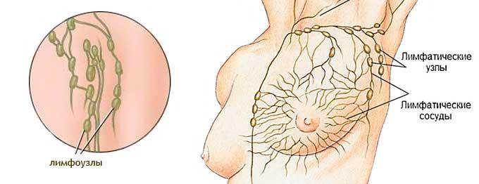 Увеличение лимфоузлов под мышками: у женщин,  при беременности, мужчин, детей