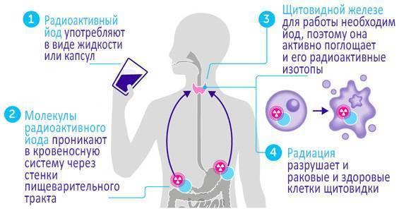 Как выполняют радиойодтерапию щитовидной железы