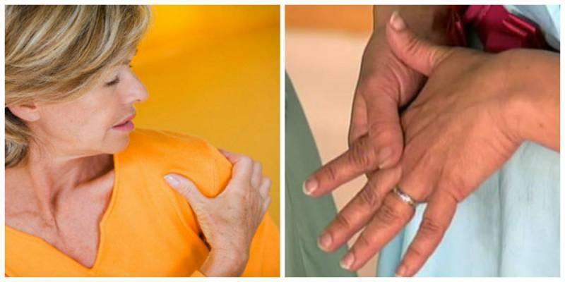 Коварное заболевание — невралгия плечевого нерва