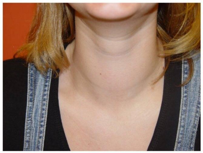 щитовидная железа эутиреоз лечение