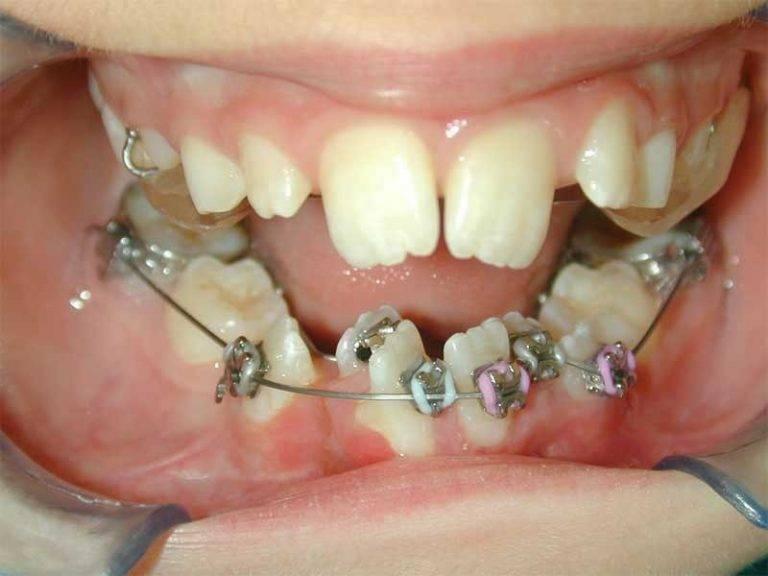 зубные скобы