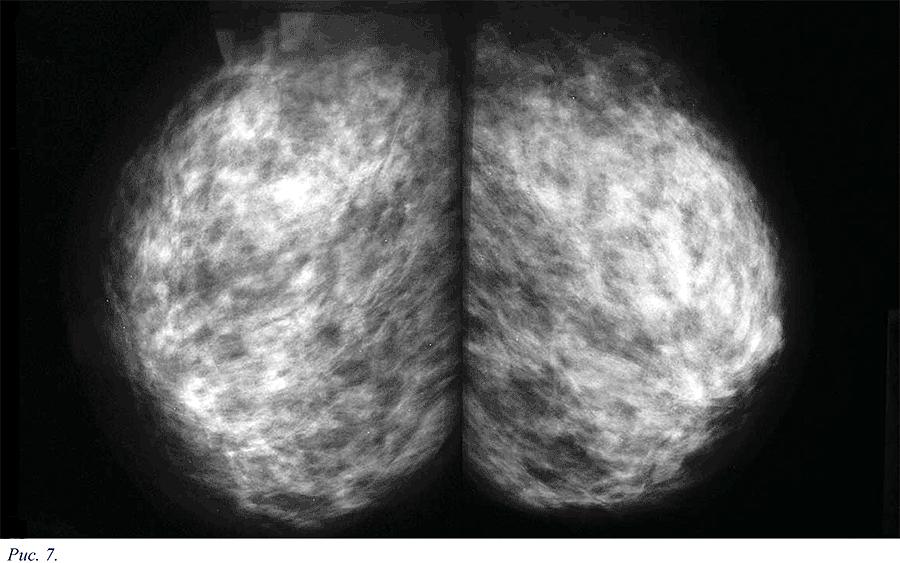 диффузная фиброзная мастопатия молочных желез что это такое