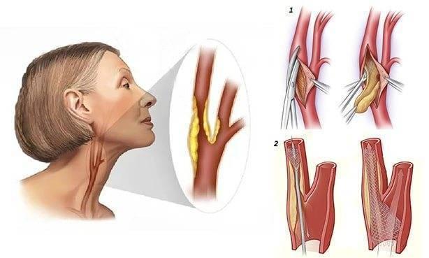 Холестериновые бляшки в сонной артерии и сосудах шеи
