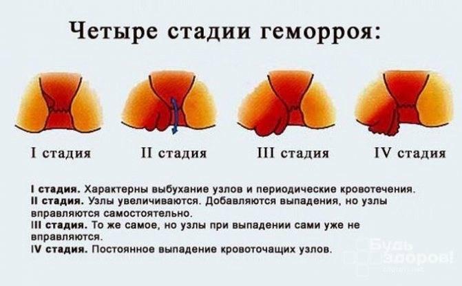 Лечение геморроя в домашних условиях у мужчин