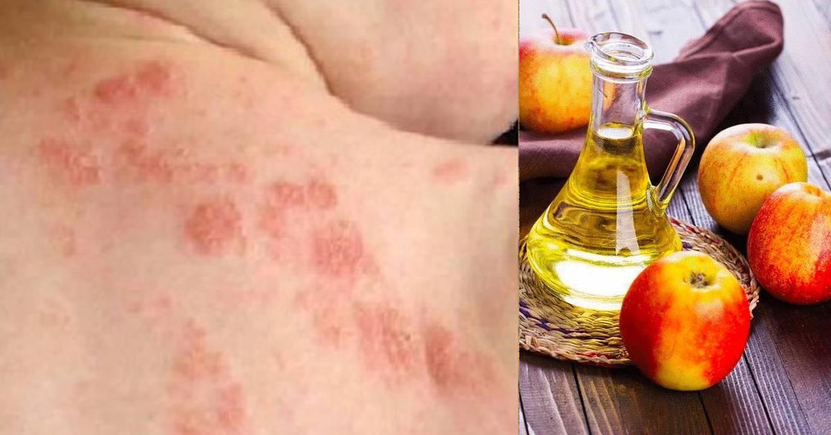 Как использовать яблочный уксус против псориаза