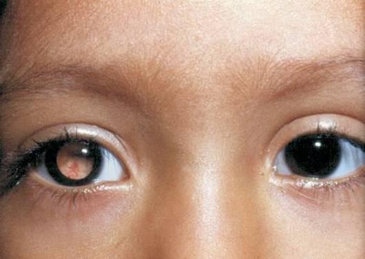 опухоль глазного яблока