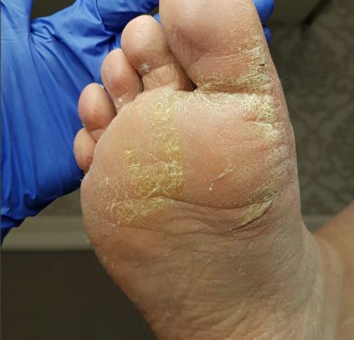 Псориаз — фото, лечение, симптомы и причины