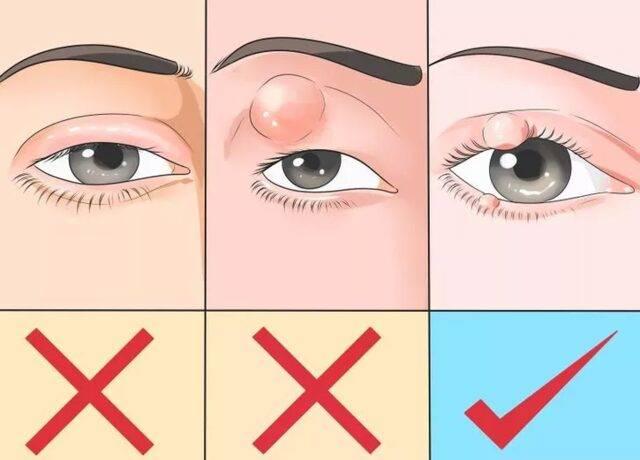 Чем убрать ячмень с глаза быстро в домашних условиях
