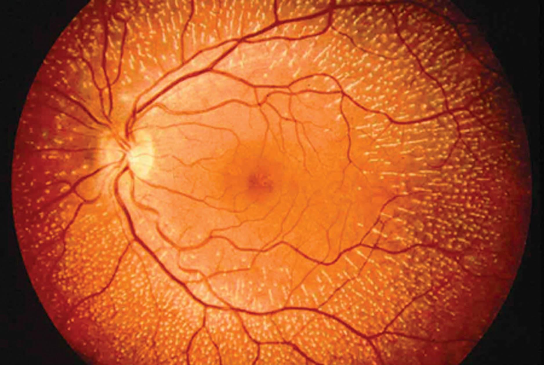 сетчатки глаза